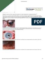Conjunctival Melanoma
