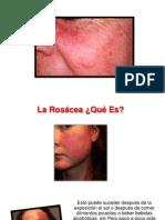 Tratamiento Natural Para La Rosacea - Rosacea Piel, Cura Rosacea, Piel Rosacea Como Curar