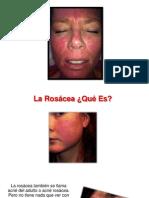 Rosacea en La Nariz - Rosacea Leve, Rosacea Enfermedad, Curar Rosacea