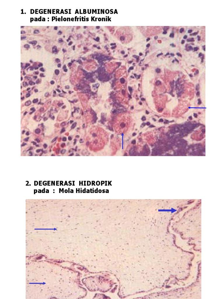 Jóindulatú hyperplasia krónikus prosztatitis ellen