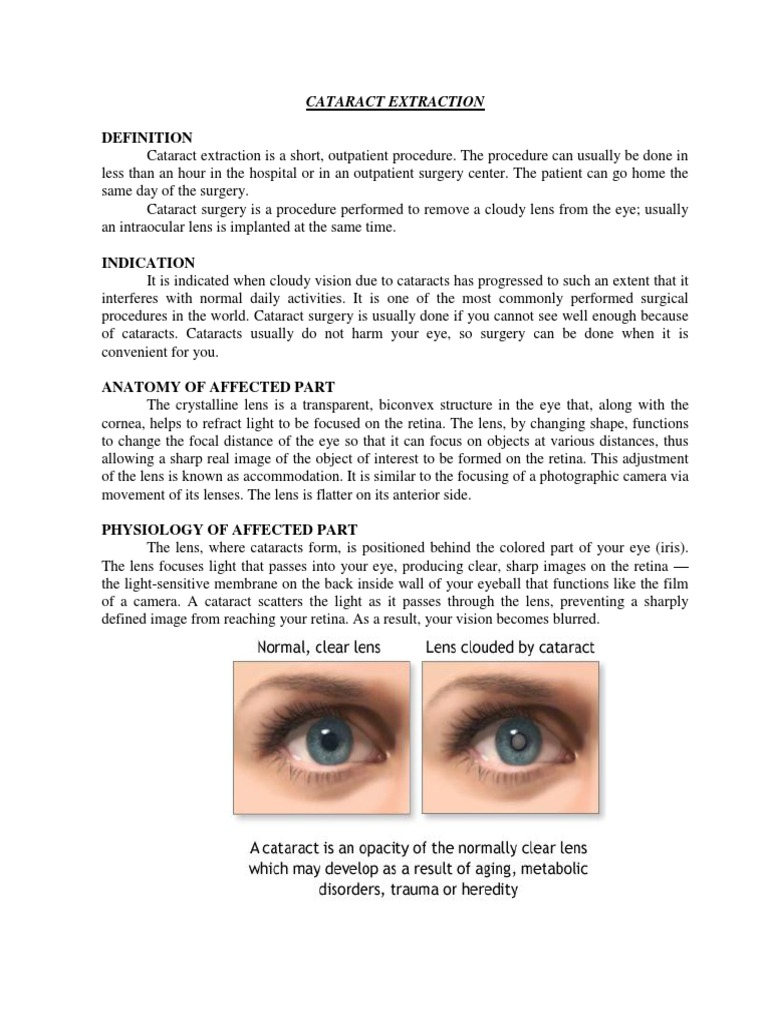 cataract extraction | anesthesia | medicine
