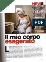 Dottor Luigi Angrisani sui casi più gravi di obesità