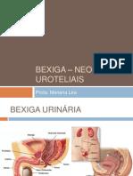 Bexiga _ Neoplasias Uroteliais