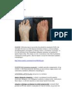 Piciorul reumatoid