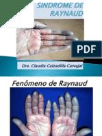 # 3  FENÓMENO DE RAYNAUD