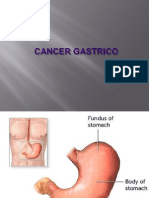 13644232 Cancer Gastrico