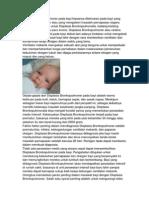 Displasia Bronkopulmoner Pada Bayi Biasanya Ditemukan Pada Bayi Yang Lahir Secara Prematur Atau Yang Mengalami Masalah Pernapasan Segera Setelah Lahir Berisiko Untuk Displasia Bronkopulmonalis