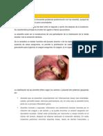 Alveolitisjjjj