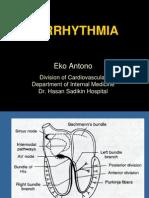 Arrhythmia FKUP