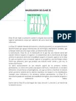 Maloclusion Clase II en Ortodoncia