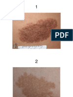 Pigmented Skin Lesions.ppt