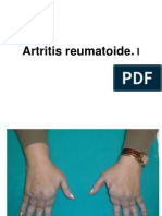 Unidad 2.2 Artritis_reumatoide.i