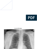 PPT radiografii