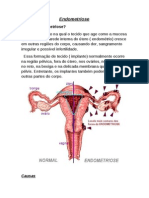 Endometriose-1