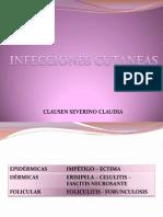 INFECCIONES CUTANEAS