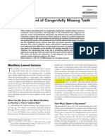 Management of Missing Teeth Kokich