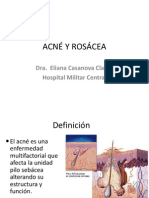 3. Acne Rosacea