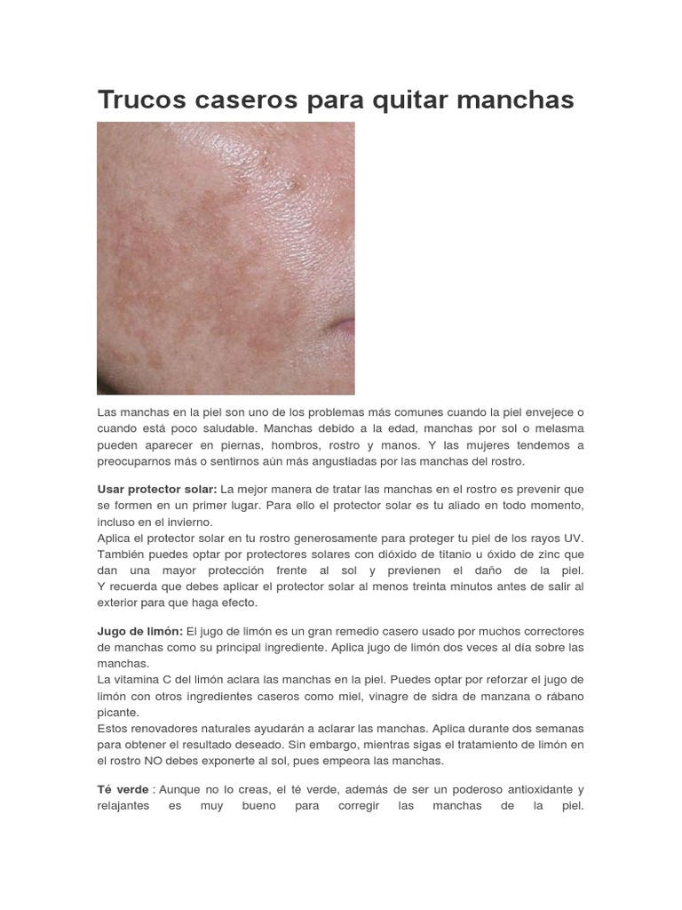 como quitar manchas de la piel por edad