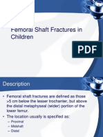 Femoral Shaft Fractures in Children Journal
