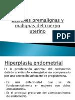 Lesiones Premalignas y Malignas Del Cuerpo Uterino