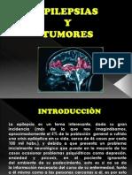 Epilepsias y Tumores (1)