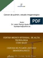 Cancer Pulmon Estudio Imagenologico