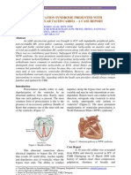 WPW Syndrome presented as VT