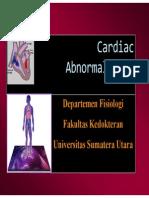 Patofisiologi Aritmia