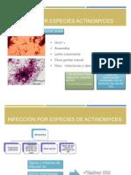 Infección Por Especies Actinomyces
