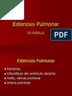 Estenosis Pulmonar788888888888888888888