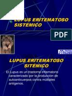 Lupus Eritematoso Sistémico (1)