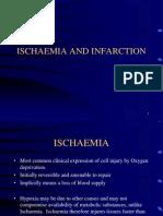 Ischaemia heart