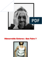 Hemorroide Externe, Soigner Les Hemorroides, Preparation H Hemorroides, Hemoroide Medicament