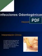 infeccionesodontogenicas-phpapp01