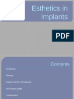 Esthetics in dental Implants