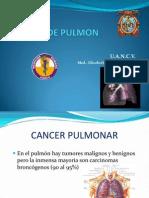 Clases Cancer de Pulmon