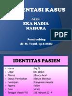 Slide Preskas