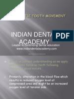 0rthodontic Tooth Movement