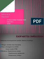 Esofagitis Infecciosa y Causticos