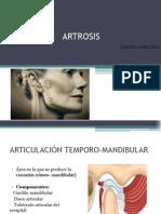 Osteoartrosis en Atm