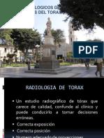 Primer Tema de Signos Radiologicos