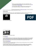 retinosis pigmentaria para mamá.doc