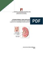 Litiasis renal oxalocálcica