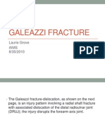 galeazzifracture-100921223526-phpapp02