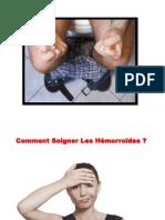 Hemoroide Externe, Creme Pour Hemorroides, Hemorroides Externes Traitement, Douleur Hemoroide