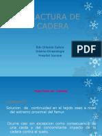 Fractura Cadera