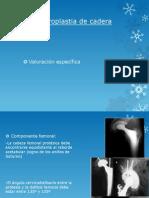 fractura rodilla y tobillo