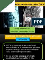 Compresión Medular de Causa Oncológica