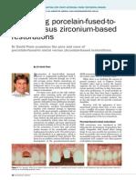 No31 Comparing Porcelain-fused-To-metal Versus Zirconium-based Restorations