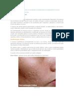 Doenças Da Pele